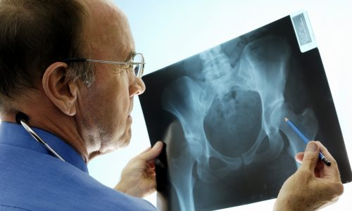 An experienced Caucasian orthopaedic surgeon (doctor) examining a pelvic x-ray displaying signs of osteoporosis - hip degeneration.  Actual x-ray of a 42 year-old woman with a degenerative hip.  The Orthopaedic surgeon is using a pencil to point at the hip where the problem is. This patient is a candidate (real) for hip replacement.  The dominant colour is blue.